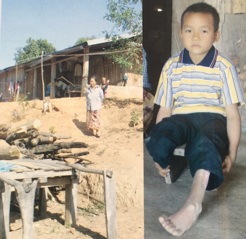 Santar COPE Connect Laos